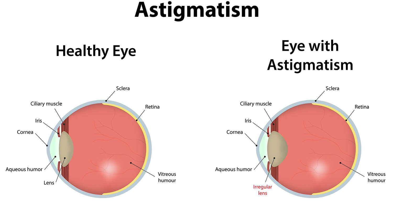 Normal-vs-Astigmastim